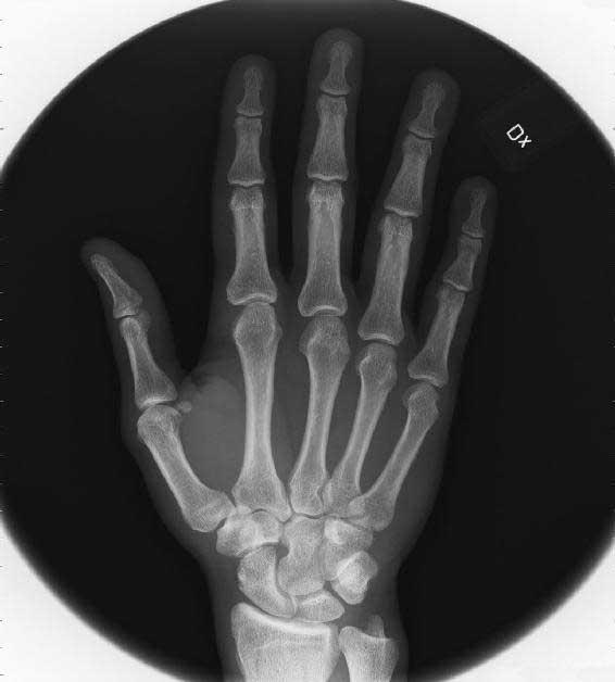 "Bild 8: Marcus röntgade högra hand: ""A white vase on a table"""