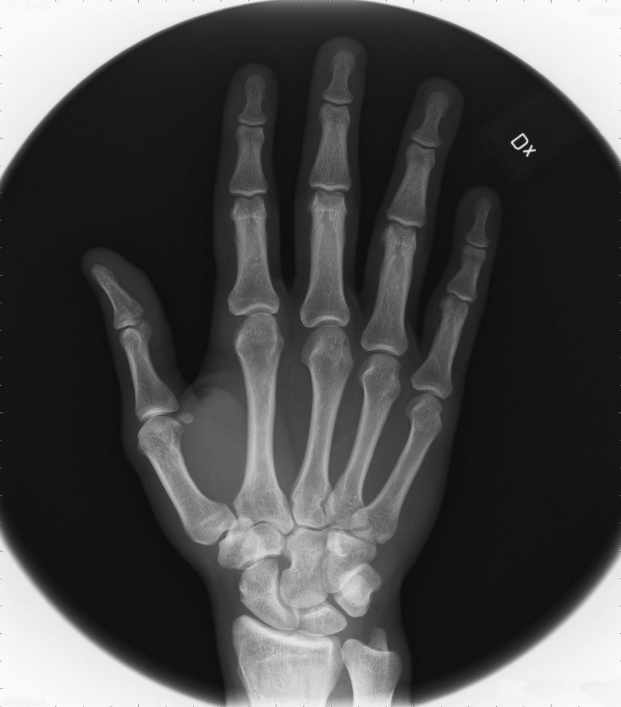 "Fig. 7: Marcus X-rayed his right hand: ""A white vase on a table"""