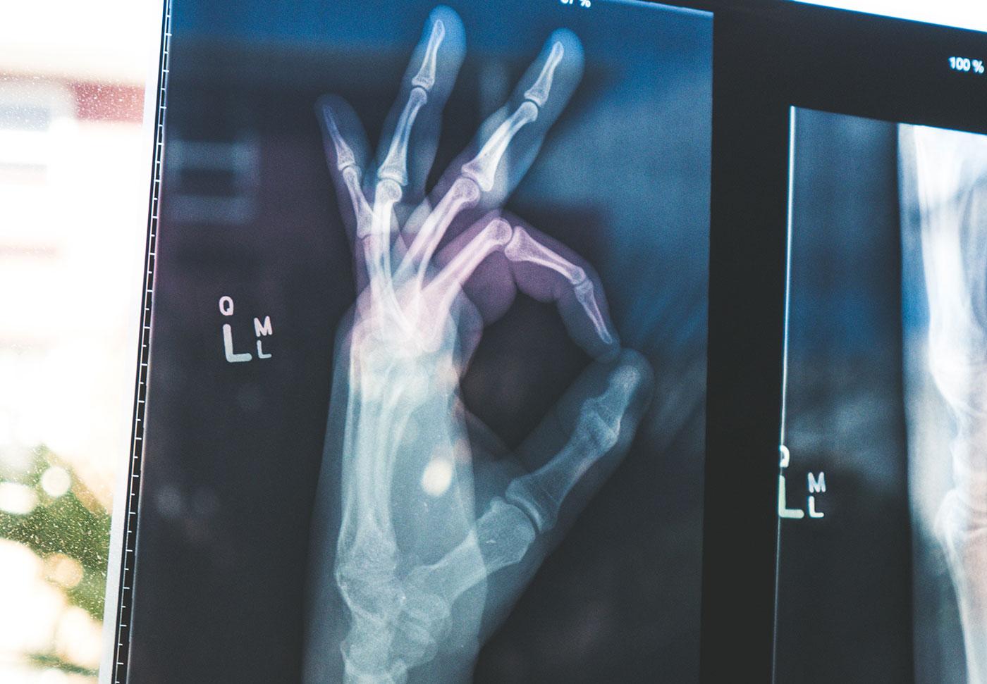 En röntgad hand som ger sitt gillande